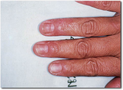 Treatments to prevent hand skin irritation in the